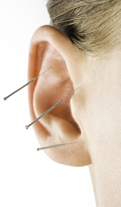 akupunktur ohr